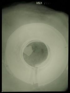 Røntgenfoto af vulstringene, hvor de ligger over hinanden i jordpræparatet, Bronzefund, VejleMuseerne